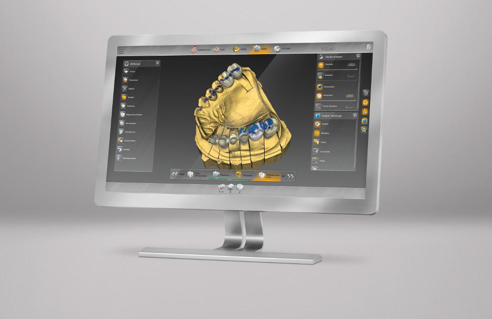 software inlab cad